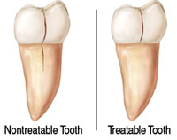 Cracked Tooth | Waterfront Endodontics