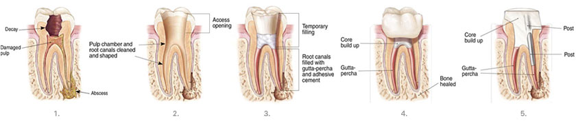 Root Canal Therapy | Waterfront Endodontics